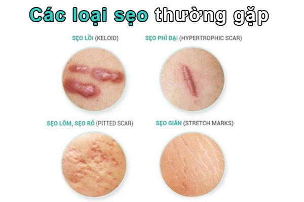 Các loại sẹo và cách điều trị