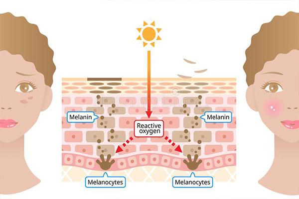 Tránh để vết sẹo thường xuyên tiếp xúc với ánh nắng trực tiếp