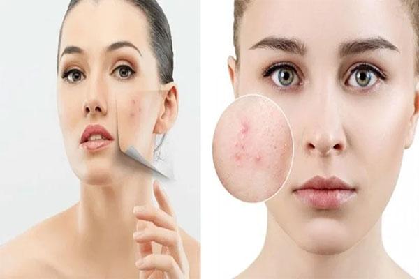 Sẹo thâm trên mặt do mụn gây ra