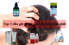 Top 5 dầu gội trị nấm da đầu hiệu quả nhất hiện nay