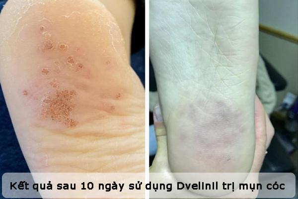 Kết quả sau 10 ngày sử dụng gel Dvelinil trị mụn cóc